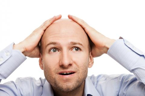 Why do shorter men go bald more often?