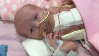 Baby born with heart outside body moved to Nottingham