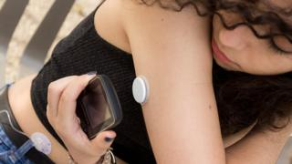 Diabetes glucose monitors