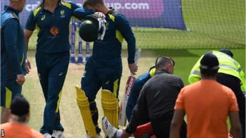 Net bowler walks for first time since being felled by Warner drive